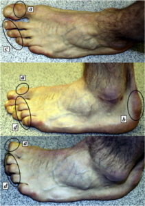 climber's foot 3 | Family Podiatry Centre | Best Foot Doctor Podiatrist DPM Clinic Singapore Malaysia